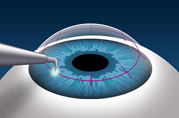 Image of CK Cornea Surgery
