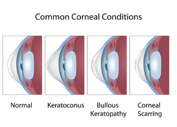 Chart of common corneal conditions
