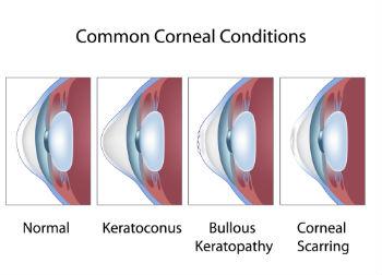 Common Cornea Conditions