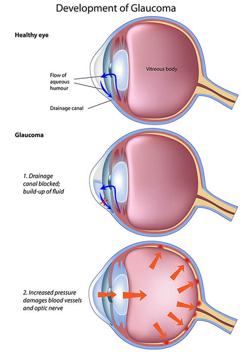 Chart showing the development of glaucoma