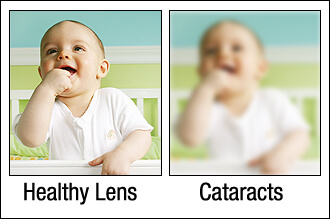 Chart showing what it looks like to see with a cataract vs seeing with a normal lens