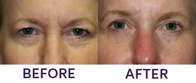 4-Eyelid Blepharoplasty & Internal Brow Lift
