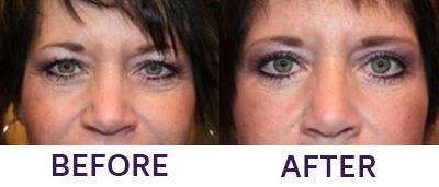 4-Eyelid Blepharoplasty & Internal Brow Lift