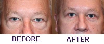 4 Eyelid Blepharoplasty