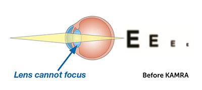 Chart showing eye before KAMRA procedure