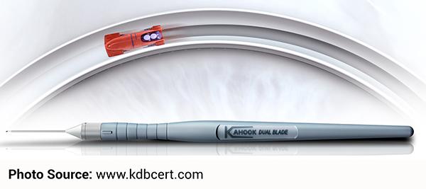 Kahook Dual Blade (KDB)