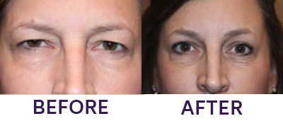 Endoscopic Brow Lift & Upper Eyelid Blepharop