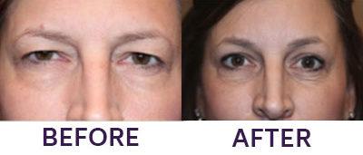 Endoscopic Brow Lift & Upper Eyelid Blepharop