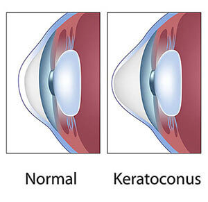 Chart showing a normal eye vs one with keratoconus