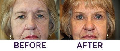 Pretrichial Browplasty/Bilateral Upper Lift