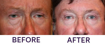 Ptosis Repair, Eyelid Blepharoplasty & Intern