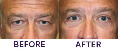 Upper Eyelid Blepharoplasty & Internal Brow Lift
