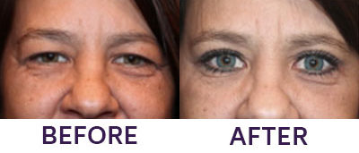 Upper Eyelid Blepharoplasty & Internal Brow Lift