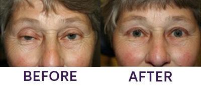 Upper Eyelid Blepharoplasty & Ptosis Repair
