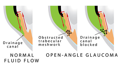 Chart showing an eye with open angle glaucoma