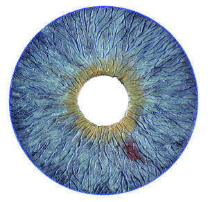 Picture of the Artificial Iris up close.