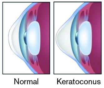 "Keratoconus Eye and ""Normal"" Eye"