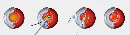 Cataract Surgery Diagram