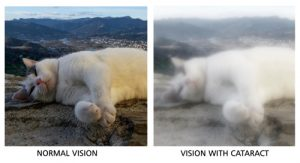 Normal vision versus vision with Cataracts