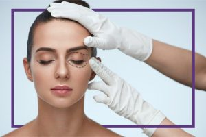 Woman getting ready for eyelid surgery